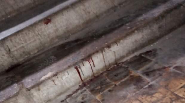 Дочь пожилой тагильчанки обвиняет в ее смерти УК из-за отсутствия перил