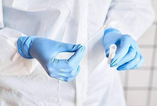 За минувшие сутки в регионе выявили 103 случая коронавируса