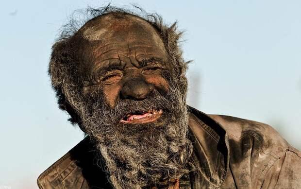 E4EI01m Так выглядит человек, который не мылся 60 лет