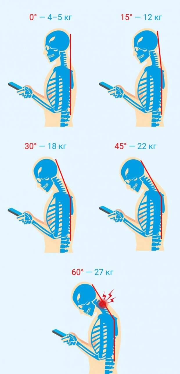 Чем опасен синдром компьютерной шеи и как избежать необратимых для здоровья последствий