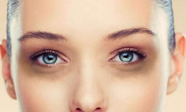 Как эффективно избавиться от «мешков» и тёмных кругов под глазами за копейки