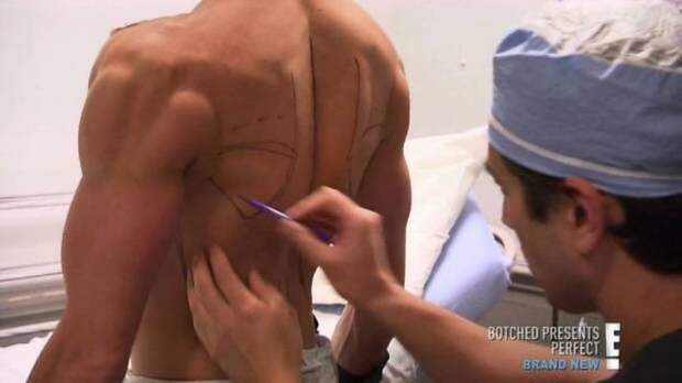 "Шокирующие признания пластического хирурга - ""до"" и ""после"" пластика, своими руками, хирургия"