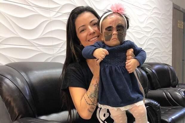Лечение девочки с «маской Бэтмена» из США продолжат в Краснодаре с 21 сентября
