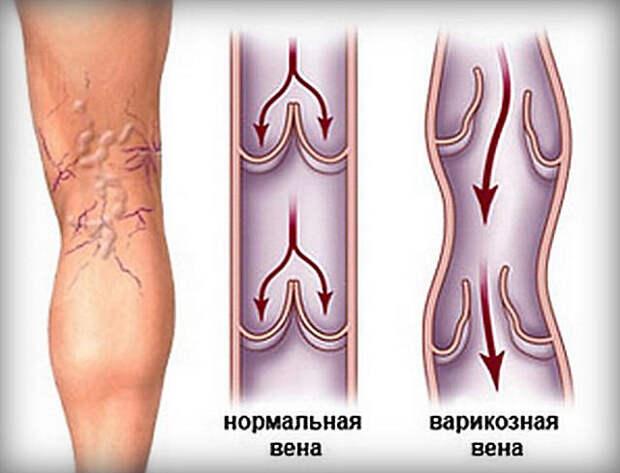 Варикоз — комплекс упражнений для лечения