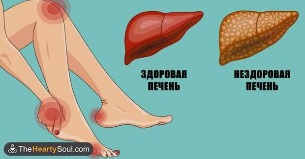 Вот как тело предупреждает вас, что ваша печень в опасности
