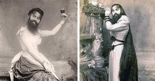 Трагическая жизнь бородатой женщины Энни Джонс, которая была настоящей леди