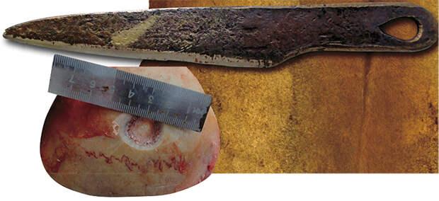 Новосибирский нейрохирург провел трепанацию черепа методами бронзового века