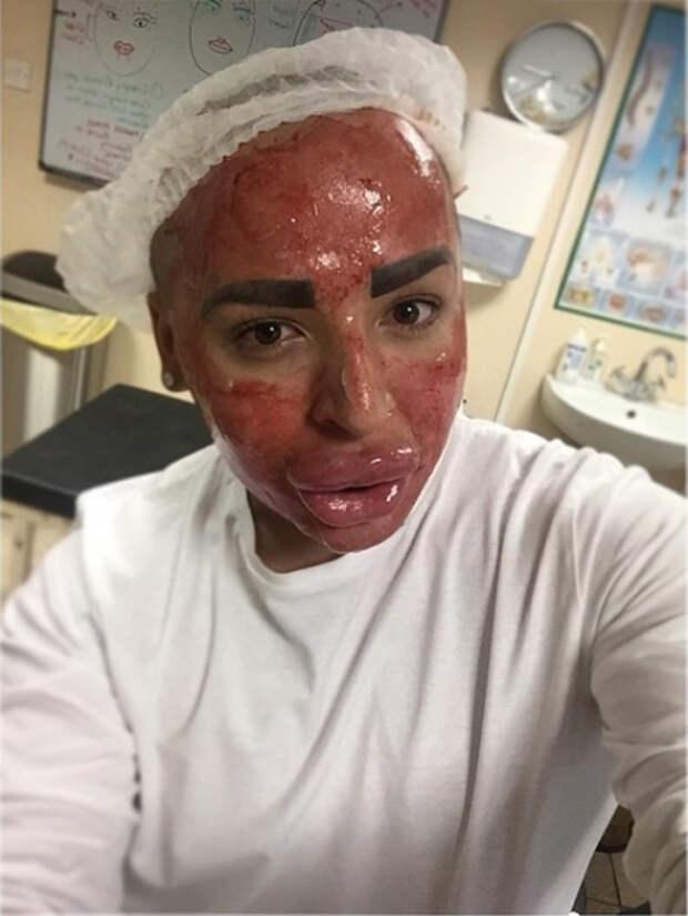 Поклонник Ким Кардашьян потратил $157 000 на операции, чтобы стать похожим на своего кумира