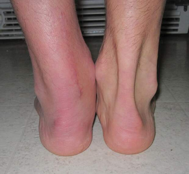 8. Примерно так выглядит нога после разрыва ахиллова сухожилия балерина, бодибилдер, велосипедист, жутко, интересно, спорт, спортивные травмы, спортсмены