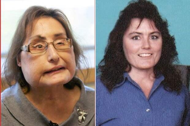 «Пережила более 30 операций»: в США умерла американка, которой пересадили ткани лица