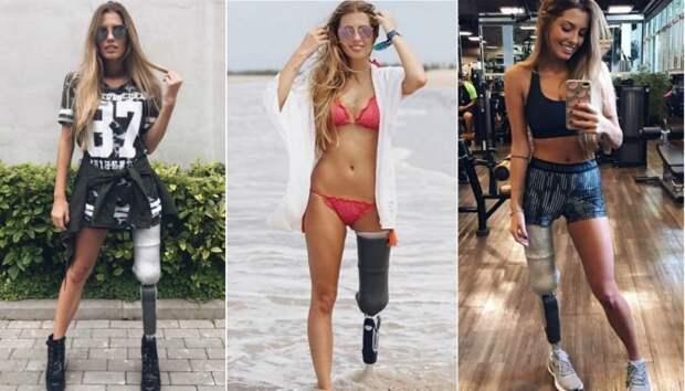 Бразильская модель Паола Антонини (Paola Antonini), потерявшая левую ногу в автомобильной аварии женщины, жизнь, инвалидность, сила воли