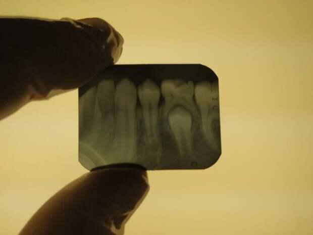 15 рентгеновских снимков, которые показывают скрытые стороны нашей жизни