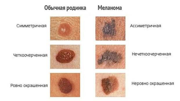Список самых опасных и незаметных болезней