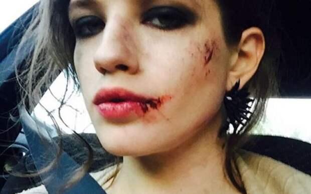 Анна Чиповская напугала поклонников разбитым лицом