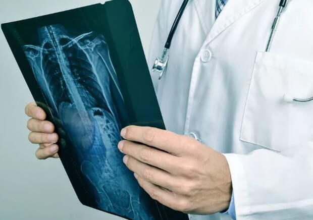 Пульмонолог Пурясев объяснил пользу жира для легких
