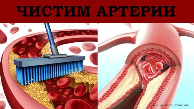 10 продуктов, которые прочистят ваши артерии без всяких лекарств