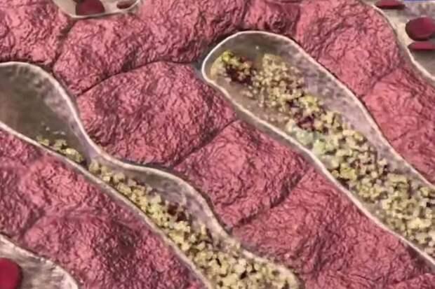Врач назвала неявный симптом высокого уровня холестерина в крови