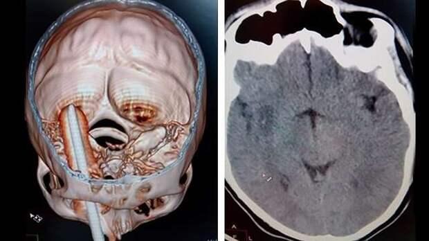На Кубани успешно извлекли штырь, пронзивший мужчине мозг