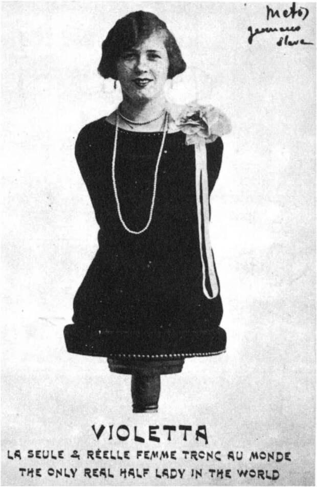 Люди без рук и без ног. 19-20 век
