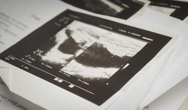 Белгородские учёные научили нейросеть выявлять COVID-19 порентгеновскому снимку