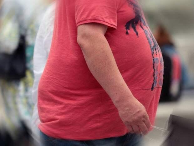 Врач рассказал о причинах ожирения людей