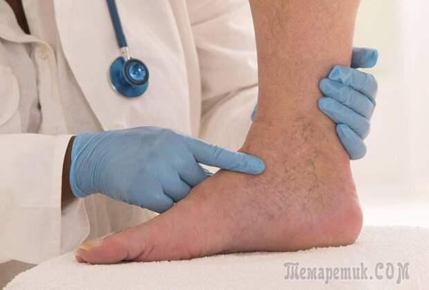 Лучшие методы лечения варикозного расширения вен на ногах