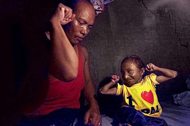 Как живет самый маленький мужчина на планете