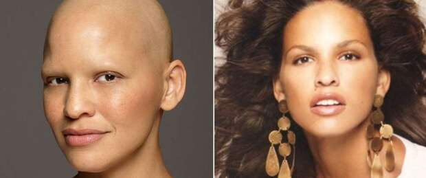 Модель Миеко Рай: «У меня рак груди третьей стадии, и я никогда не чувствовала себя более красивой»