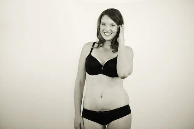 Тело рожавшей женщины