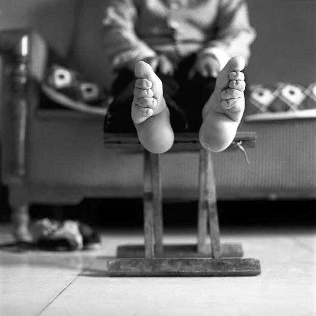 Одна из последних китаянок с уменьшенными ногами