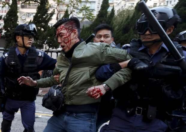 Раненный демонстрант