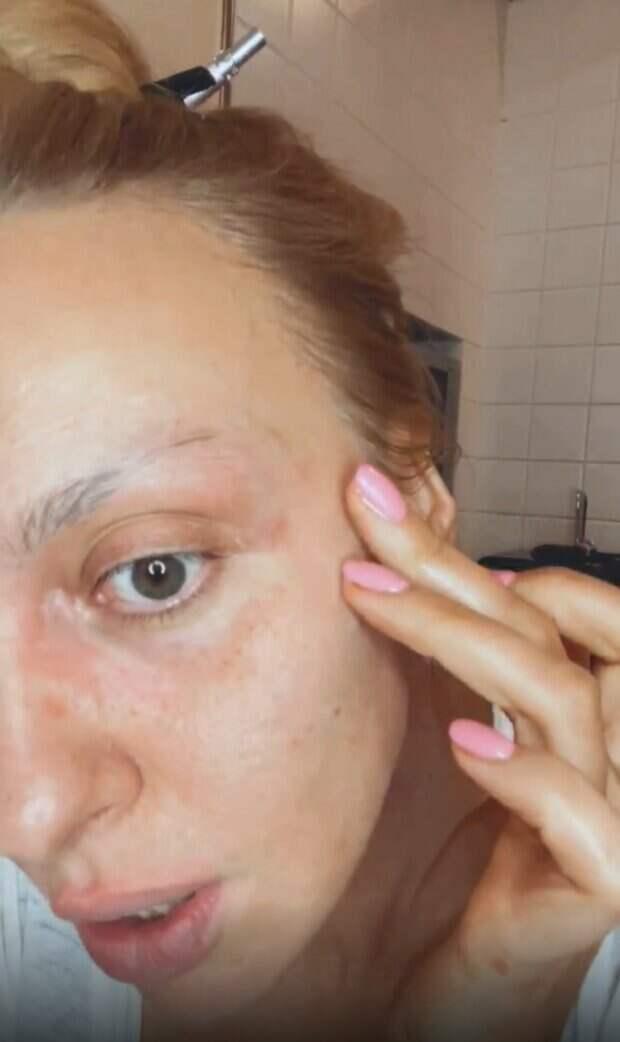 """Полякова без фильтров и макияжа показала свои недостатки: """"Меньше процедур, а то что-то страшновато"""""""