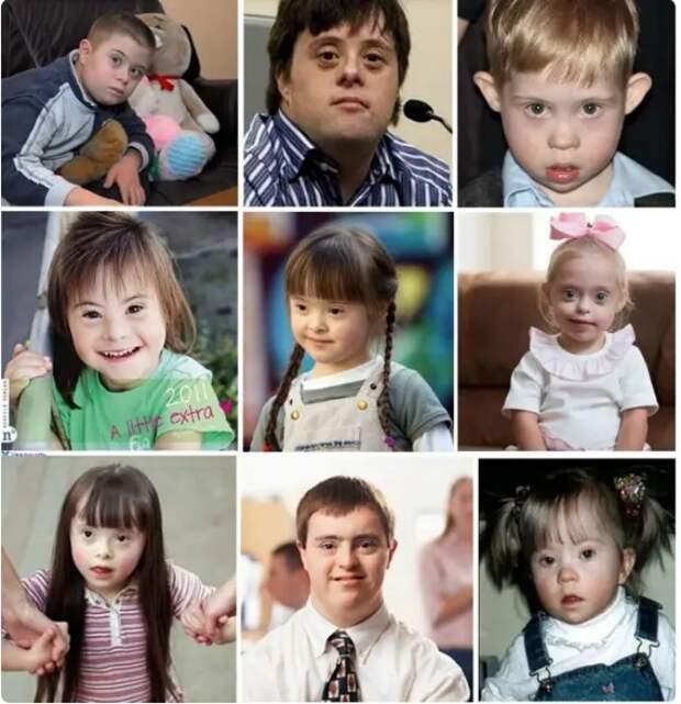 Почему люди с синдромом Дауна так похожи друг на друга?
