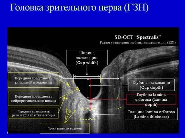 Головка зрительного нерва при глаукоме