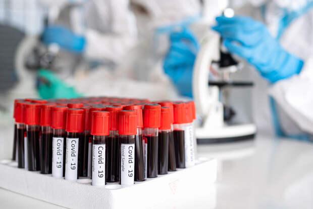 Более 8,6 тыс. случаев коронавируса выявлено в России за сутки
