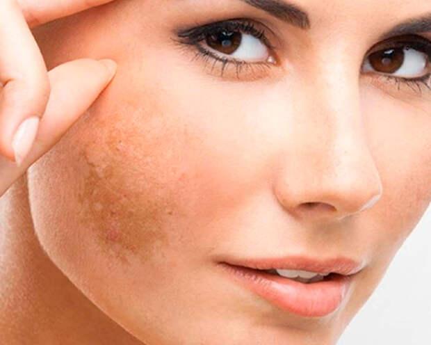 О каких болезнях расскажут пигментные пятна на лице