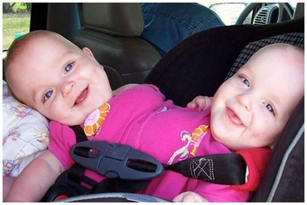 Три сестрички Мэйси, Макензи и Мэдлин родились в Калифорнии, первые две из них оказались сиамскими близнецам близнецы сиамские, бывает же, выросли, жизнь, интересное, разделили