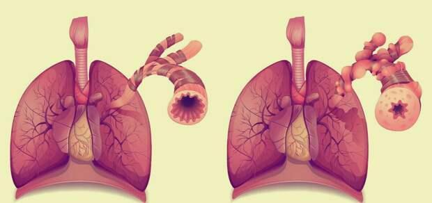 Слева здоровые легкие, справа облитерирующий бронхиолит - «попкорн легких». Источник изображения: ecigopedia.com