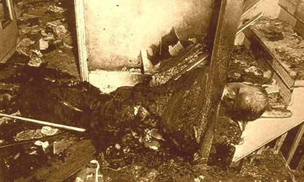 Странный случай Роберта Бейли, погибшего от пожара в... животе