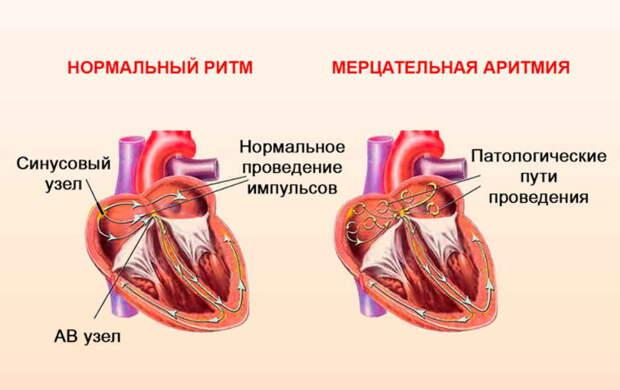 Аритмия - болезнь сердца, а лечить нужно нервы