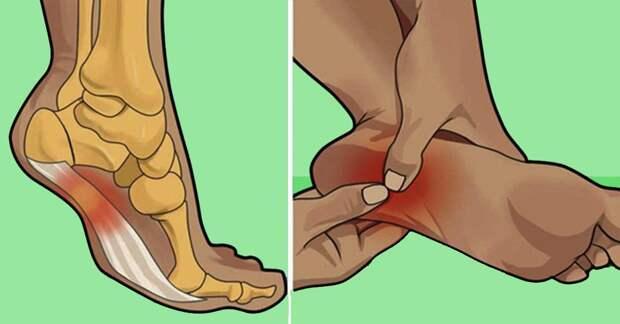 Упражнения для уменьшения боли при подошвенном фасците