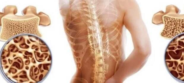 как избежать остеопороза