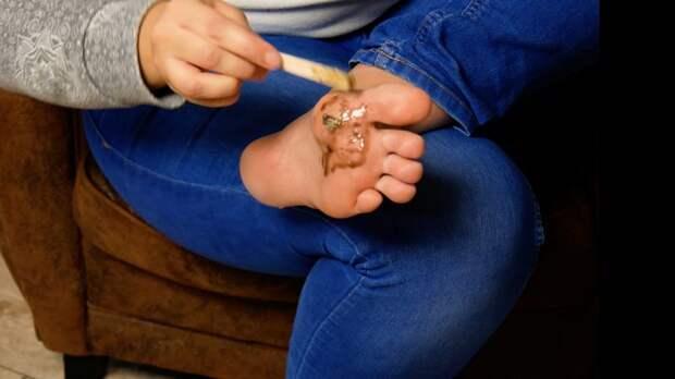 Водка на ступнях и конфеты от бородавок: 8 безумных домашних средств.