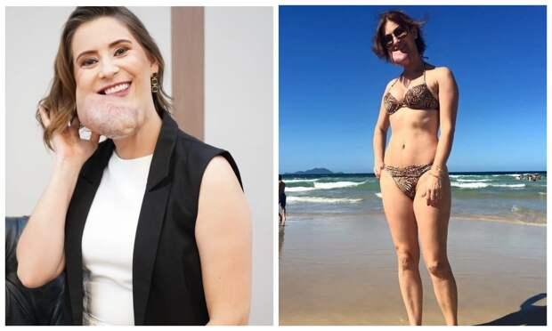 Красота, несмотря ниначто: бразильянка средким заболеванием восхищает уверенностью всебе
