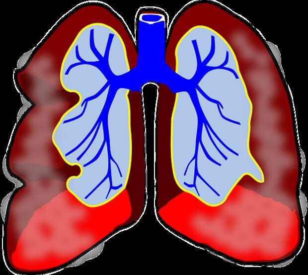 Легкие курящих чудом восстанавливаются, если бросить курить