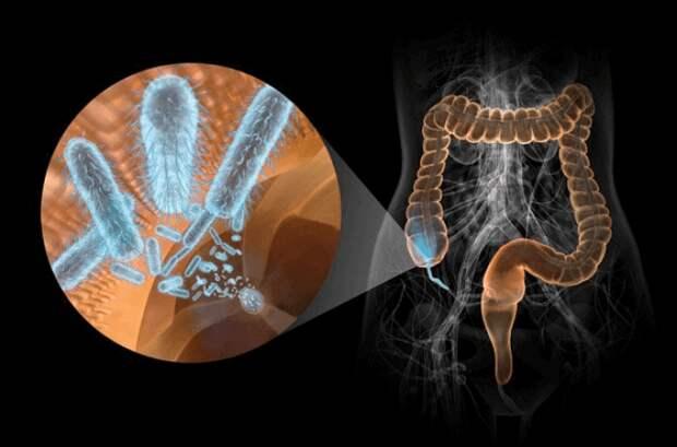 Здоровье кишечника: Как снизить риск развития рака толстой кишки?