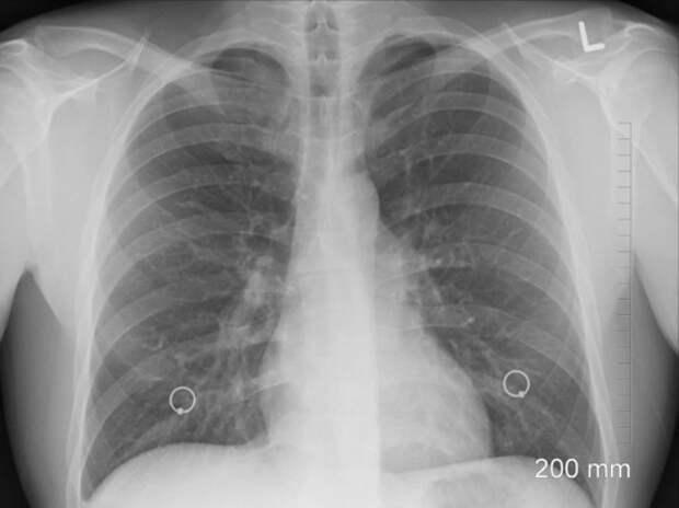 У зараженных COVID-19 нашли аномальную патологию
