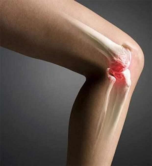 Лечение больных суставов желатином