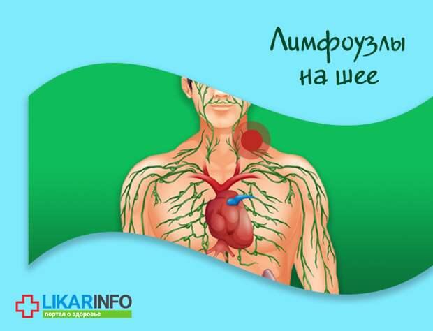 Что делать, если воспалились и болят лимфоузлы?