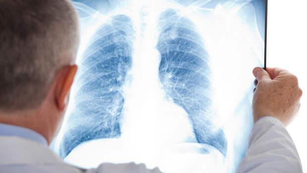 Эпидемиолог рассказал, кто чаще всего умирает от пневмонии